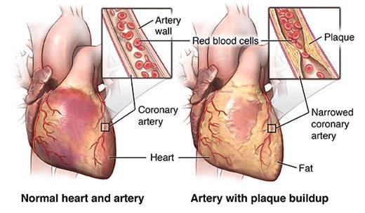 Coronary artery disease – an overview
