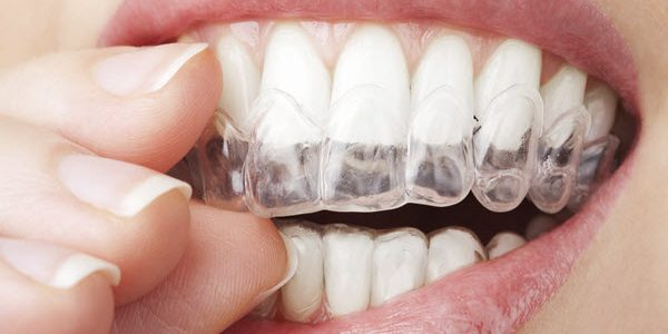 Invisalign Braces Help To Boost Your Confidence